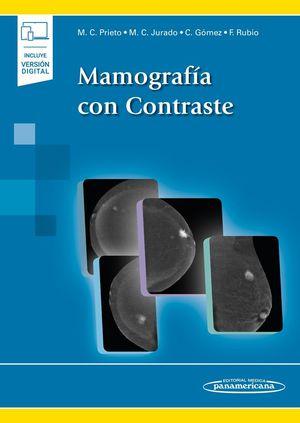 MAMOGRAFIA CON CONTRASTE (+ EBOOK)